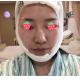 下颌角截骨的经历