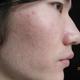 去痘疤~第一次激光治疗过程,多交流。