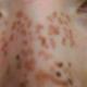 2012.4.29迷糊中被激光祛斑