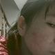 第一次磨削,治疗痘疤