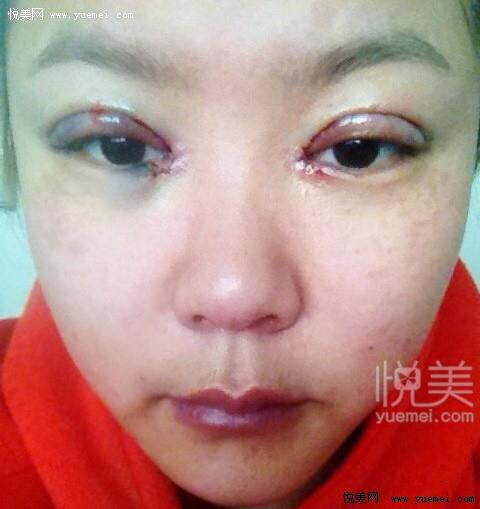 双眼皮手术过程_2014.2.19.开眼角,韩式三点定位。全记录。(陆续更新3个月的照片 ...